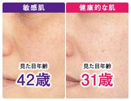 実年齢より老けて見える乾燥肌や敏感肌